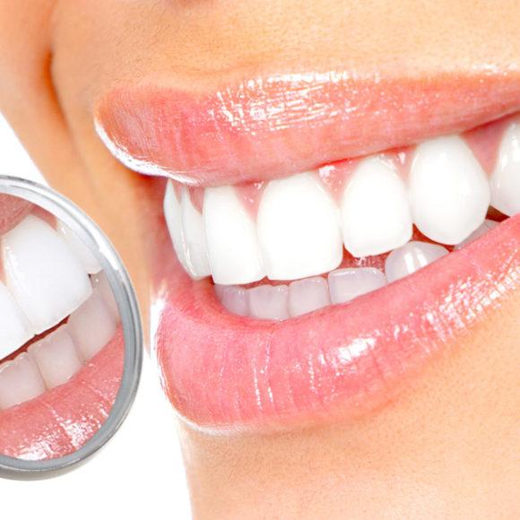 Fațete Dentare