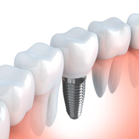 Implanturi Dentare